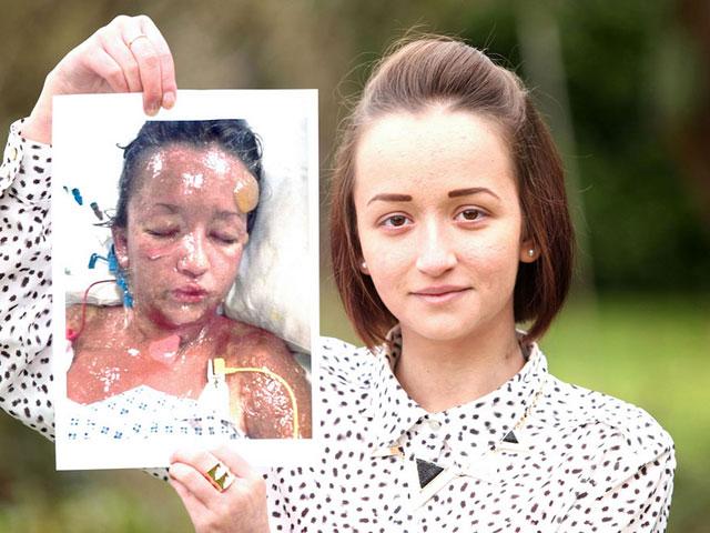 Тело девушки начало таять после приема таблеток от изжоги